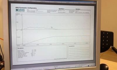 Registro flujometría en pantalla