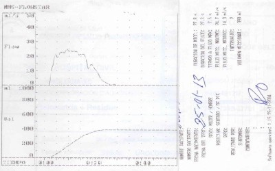 Registro flujometría obtenido en Hospital Civil (Carlos Haya)