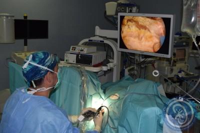 RTU de próstata y Litofragmentación con láser de Holmio