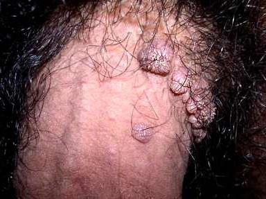 Verrugas por el VPH