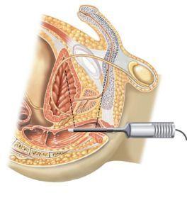 Zona anatómica de trabajo del transductor rectal