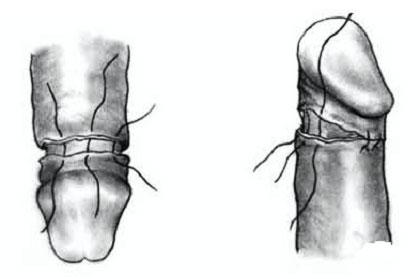 Técnica de circuncisión