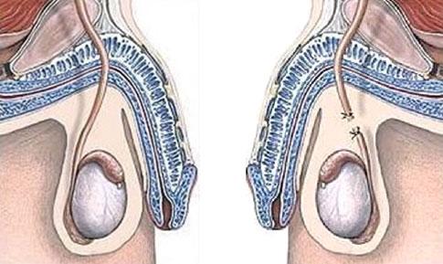 Conducto deferente antes y después de vasectomía