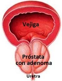 ¿Qué es un adenoma de próstata?