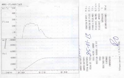 Registro en papel de una flujometría con una curva de micción normal. Registro obtenido en el flujómetro del Hospital Civil (Carlos Haya)