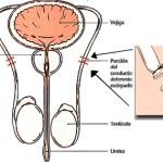 Diez claves sobre la vasectomía