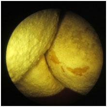 Piedras en la vejiga. Visión endoscópica