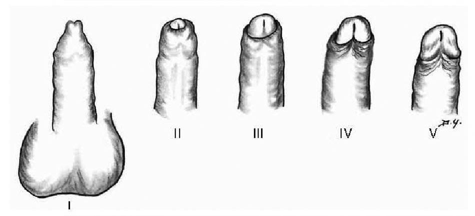 clasificación de los tipos de prepucio