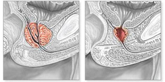 Próstata antes y después de RTU