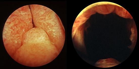 Visión endoscópica del antes y el después de RTU