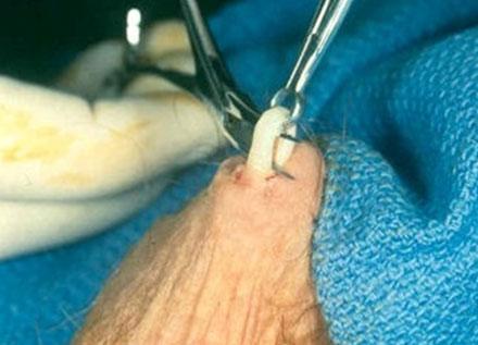 Extracción del conducto deferente para vasectomía