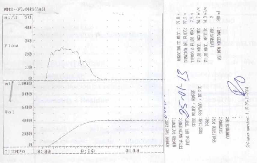 Figura 1: Registro en papel de una flujometría con una curva de micción normal. Registro obtenido en el flujómetro del Hospital Civil (Carlos Haya)