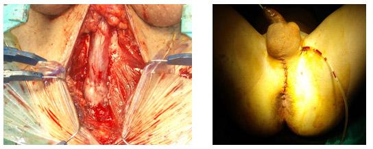 Finalizacion de uretroplastia