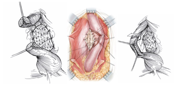 Colocacion de injerto dorsal