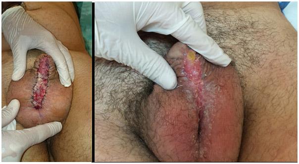 Primer tiempo de cirugia