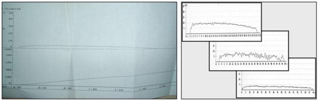 Figura 2: Registro en papel de una flujometría con una curva de micción compatible con estenosis de uretra. Obsérves la curva casi plana que se obtiene en estos pacientes.  Registro obtenido en el flujómetro del Hospital Civil (Carlos Haya)
