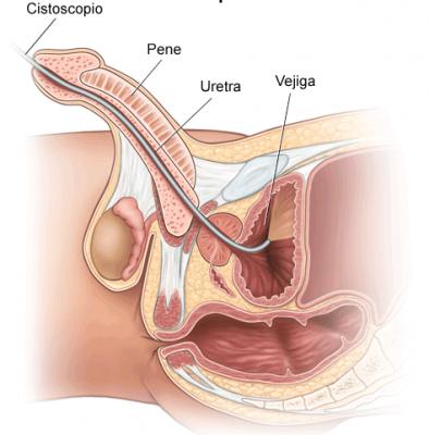 Figura 4.- Partes de la anatomía que evalúa una cistoscopia en el hombre. En este caso observamos cómo pasa por uretra (pene), próstata y vejiga.
