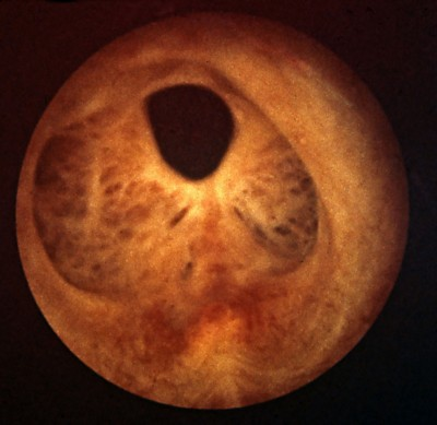 Figura 5: imagen endoscópica (uretroscopia flexible) de estenosis de uretra posterior secundaria a RTU de próstata