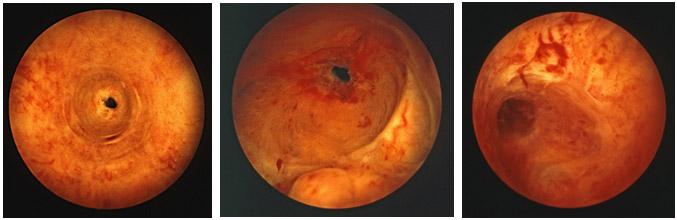 Figura 5.- Imágenes endoscópicas de estenosis de uretra diagnosticadas mediante el cistoscopio flexible