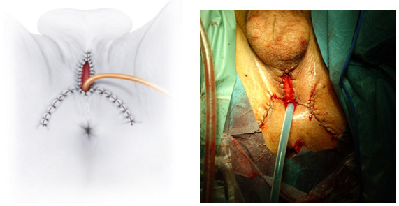 Tecnica de perineoplastia