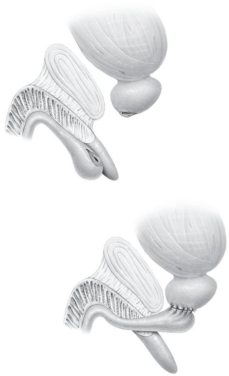 En la imagen superior se aprecia la separación de la uretra por causa traumática. En la imagen inferior se ha realizado una anastomosis (cirugía reparadora) de la uretra con el bulbo prostático.