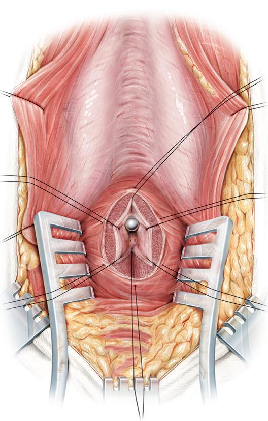 Puntos de sutura para posterior anastomosis