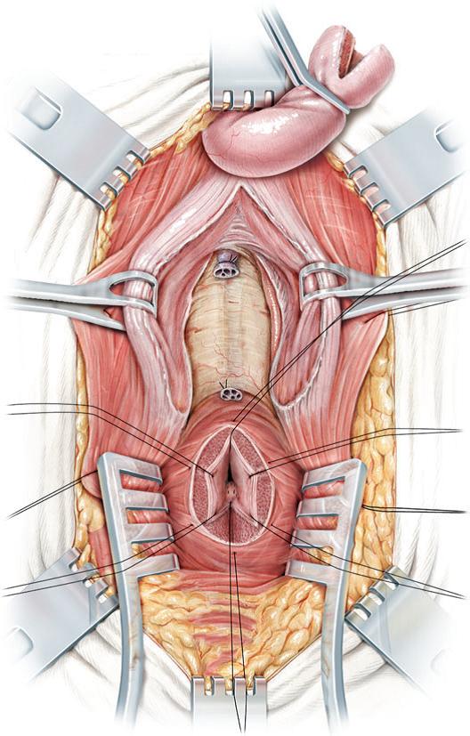 Apertura de la crura de los cuerpos cavernosos para acceder al hueso del pubis