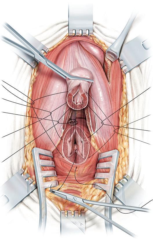 Anastomosis de ambos extremos en zona sana