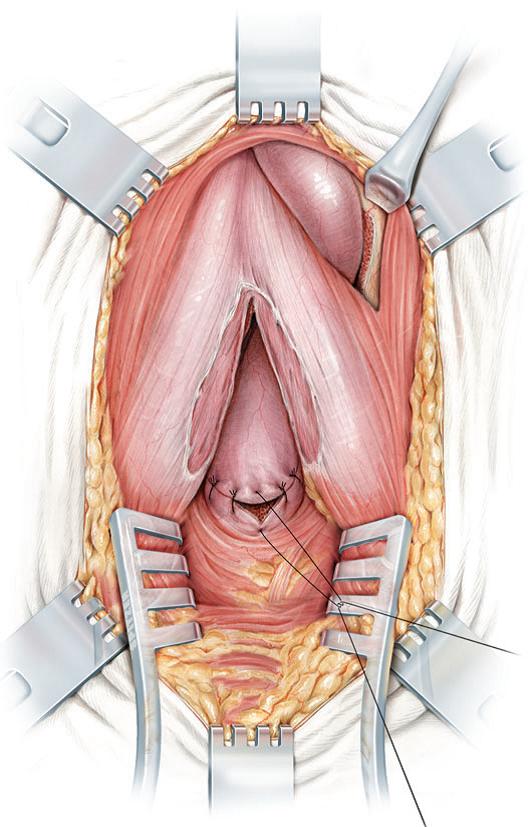 Finalización de la cirugía con la anudación de los puntos