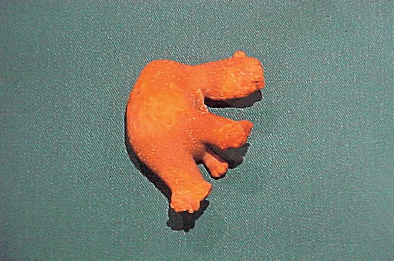 """Figura 2.- Litiasis de estruvita que moldea el riñón. Se conoce habitualmente como litiasis coraliforme o en """"asta de ciervo"""""""