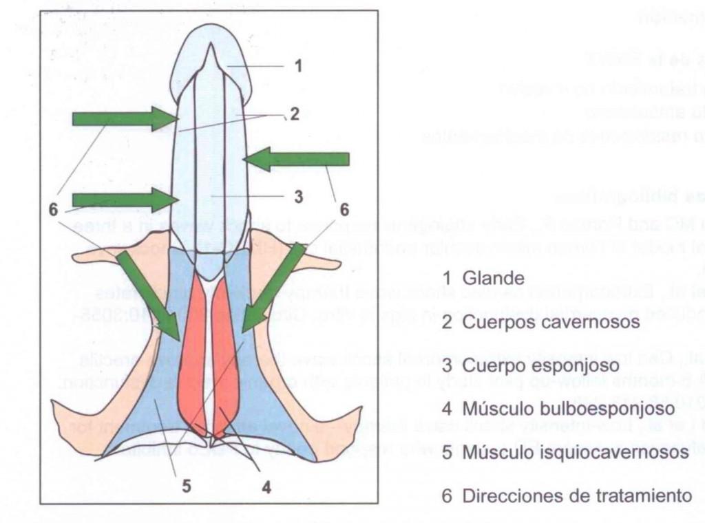 Diferentes zonas anatómicas y sentido de la aplicación de las ondas durante el tratamiento de la Disfunción eréctil
