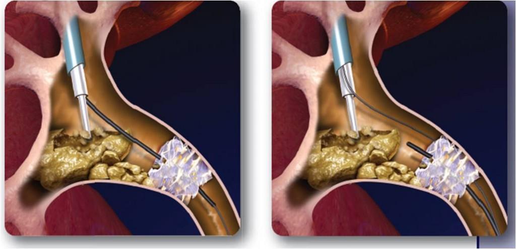 Se llega directamente a la piedra a través del riñón. Sólo indicada en cálculos de gran tamaño.