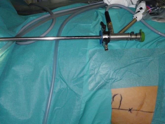 Nefroscopio (aparato) por el que se accede con cámara a través de la piel y mediante visión endoscópica se va fragmentando la piedra con láser. En la piel del costado del paciente está marcado el punto por el que vamos a entrar.