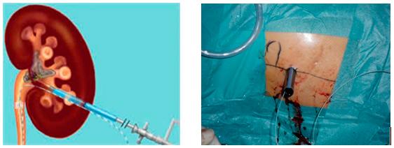nefroscopio entrando a través del cáliz inferior.