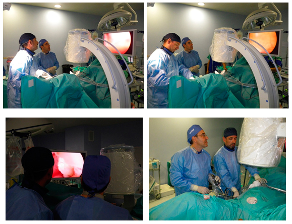 Doctores Gómez Pascual y Antuña Calle realizando una Nefrolitotomía percitánea en Hospital Quirón mediante control de rayos X en tiempo real.