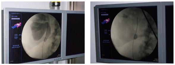 Acceso endoscópico mediante catéter hasta el interior del riñón para realizar la litofragmentación con láser
