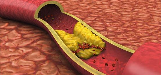 Placas de ateroma (arteriosclerosis) depositadas sobre la pared de los vasos sanguñneos que va disminuyendo su calibre e impidiendo el paso de sangre.