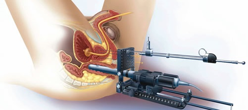 Tratamiento del cáncer de próstata mediante braquiterapia: implante de semillas radioactivas en la próstata que provocan problemas de erección.