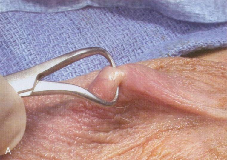 conducto deferente vasectomía