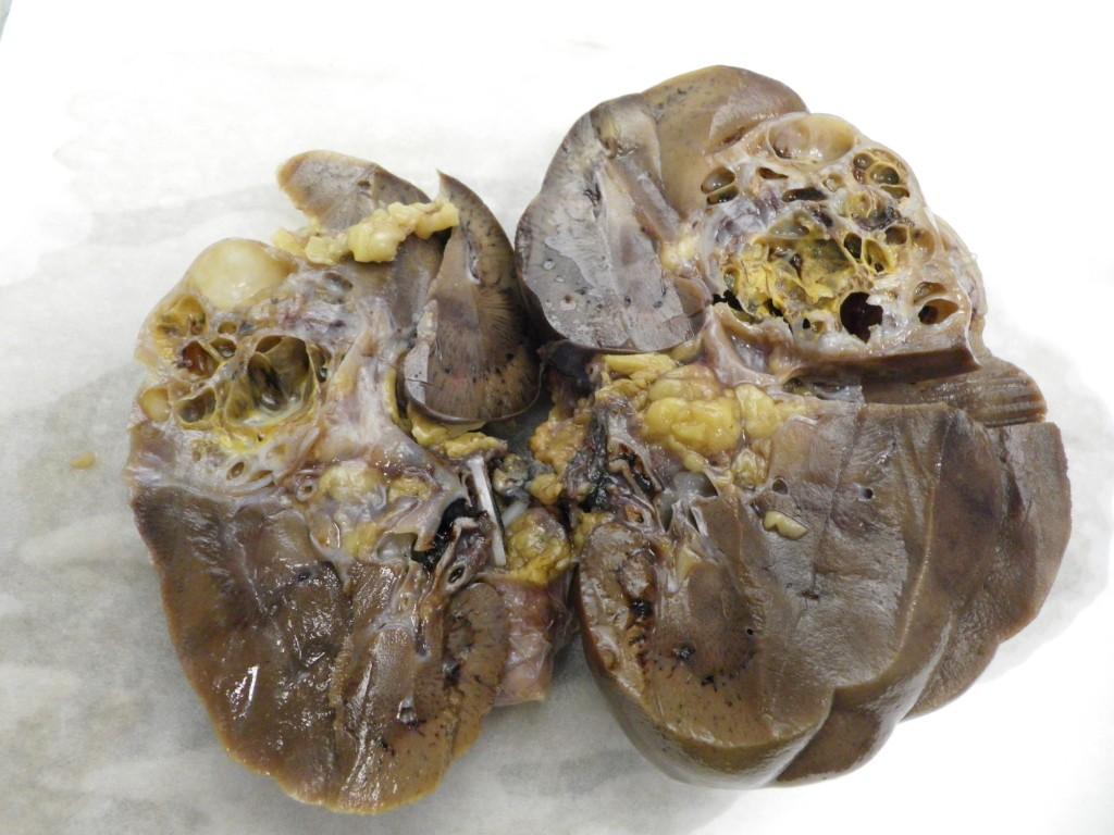 Cáncer de riñón. Información general y tratamiento. - Urólogo ...