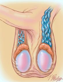 Varicocele izquierdo
