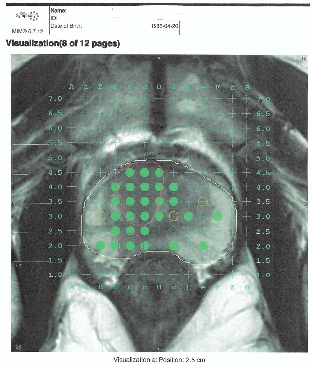 costo ecografía de próstata transrectal