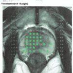 Biopsia de próstata por fusión. La herramienta clave en la detección del Cáncer de próstata