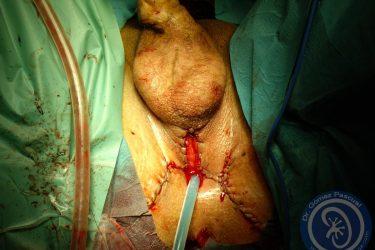 aspecto-final-tras-perineostomia