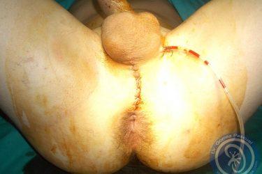 aspecto-final-tras-uretroplastia