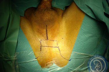 dibujo-antes-de-perineostomia