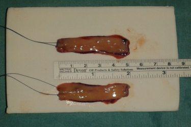 doble-injerto-mucosa-oral-extraido