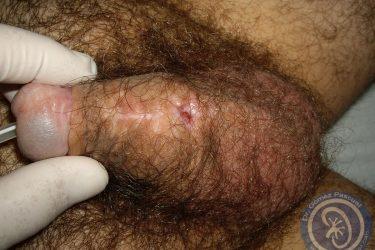 fractura-cuerpos-cavernosos-y-fistula-uretral