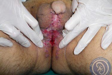 injertos-tras-uretroplastia