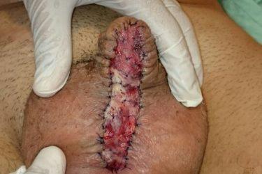resultado-colocacion-injerto-mucosa-oral-72-horas